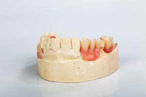 partial dentures tooth replacement